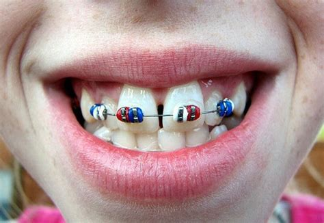 cool colors for braces 97 best images about colors braces on