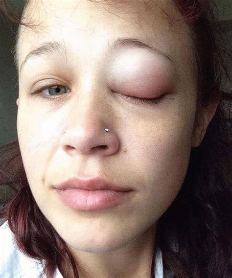eye tattoo infection eye tattoo horror story fail catt gallinger