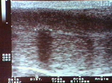 ecocolordoppler vasi spermatici urologia andrologia lauria