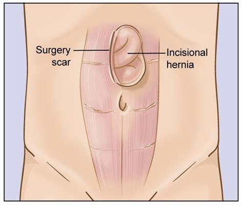 incisional hernia c section governor chris christie s secret weight loss surgery