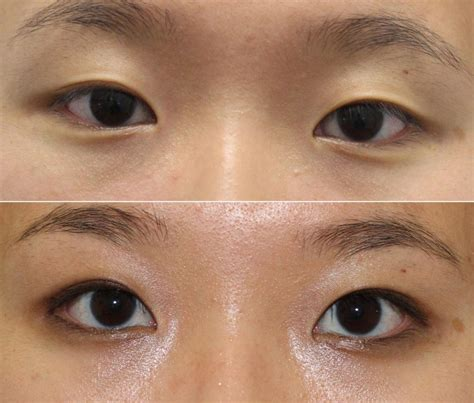 double eyelid expert in asian double eyelid surgery nyc