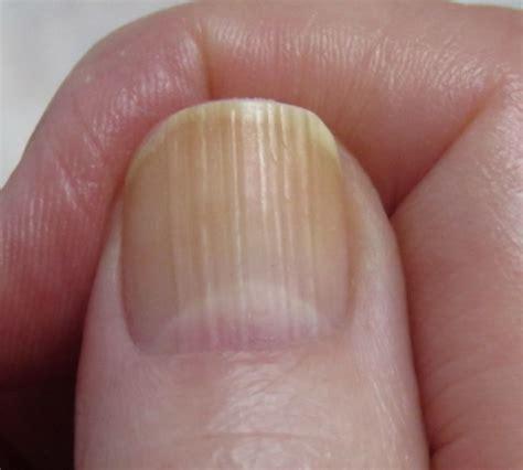 several toenails look skin color under them nail discoloration brown yellow black from nail polish