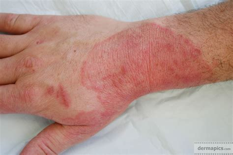 fungal skin infection fungal infection of the skin ringworm pictures and clinical information