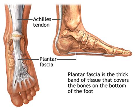 Planter Facia by Plantar Fasciitis From Injury To Recovery Get Going