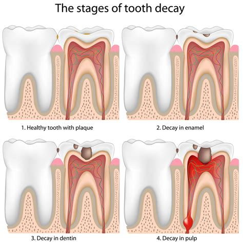 tooth infection tooth infection net health book