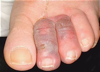 swollen toe photo quiz swollen discolored toes american family physician