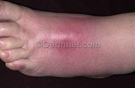 Salep Klindamisin kaki bengkak dan nyeri alodokter