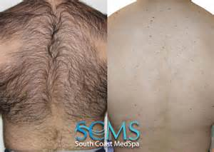 back hair laser hair removal los angeles laser hair removal orange county body hair removal laser