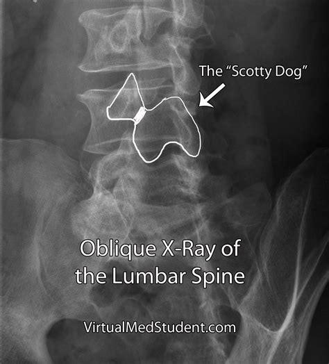 scotty fracture virtualmedstudent spondylolysis