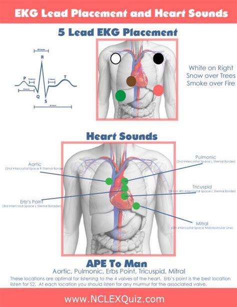 pediatric lead placement diagram best 25 pics ideas on nursing
