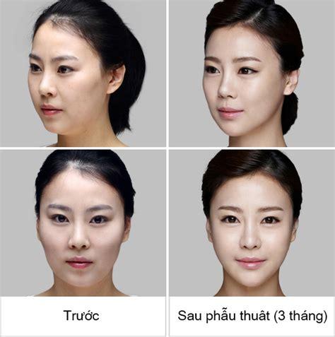 how to get a smaller forehead men hạ g 242 m 225 3d c 243 duy tr 236 kết quả trọn đời kh 244 ng