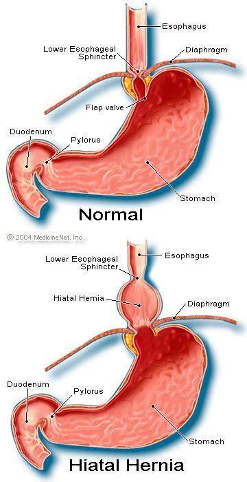 definition  hiatal hernia