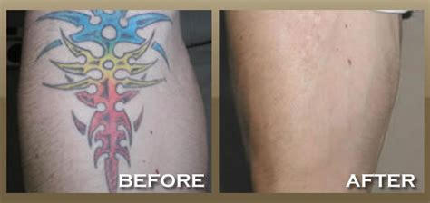 how laser tattoo removal works australian society of