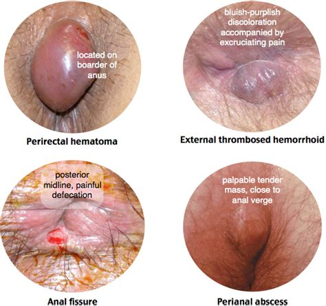 external hemorrhoid pain perirectal hematoma vs external thrombosed hemorrhoid vs