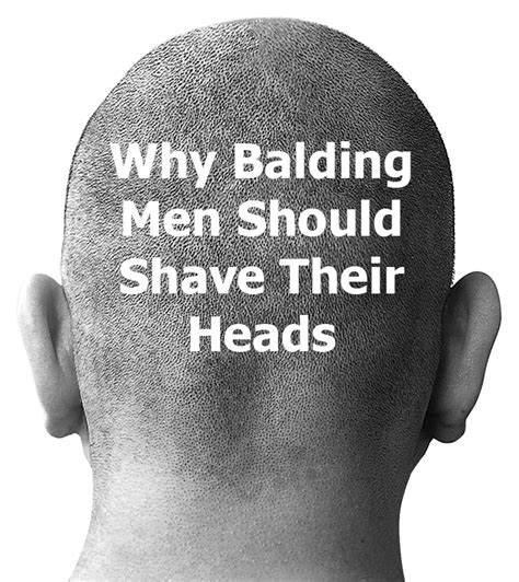 balding why you should watch your hairline men s hair blog why balding men should shave their heads infobarrel
