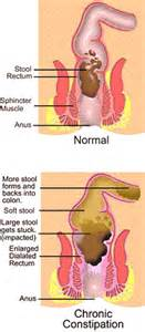suffering from chronic constipation colon cleansing can