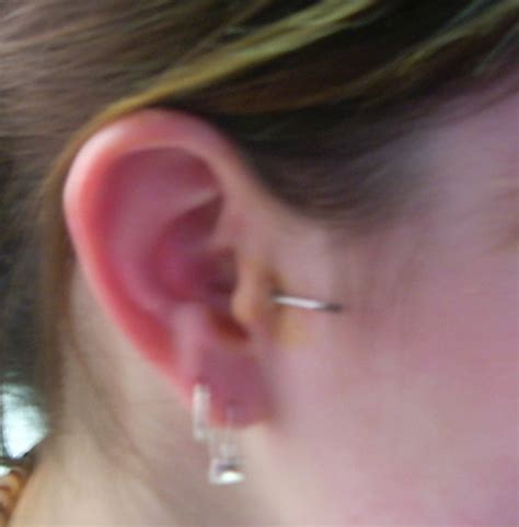 infected tragus piercing file tragus piercing needle jpg wikimedia commons