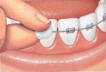 Ortho Wax Anti Sariawan Wax Behel perawatan ortodonti merapikan gigi jb dental klinik