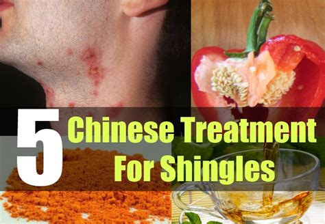 5 treatment for shingles how to treat shingles