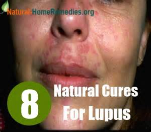 home remedies for lupus 8 cures for lupus tips for treating lupus