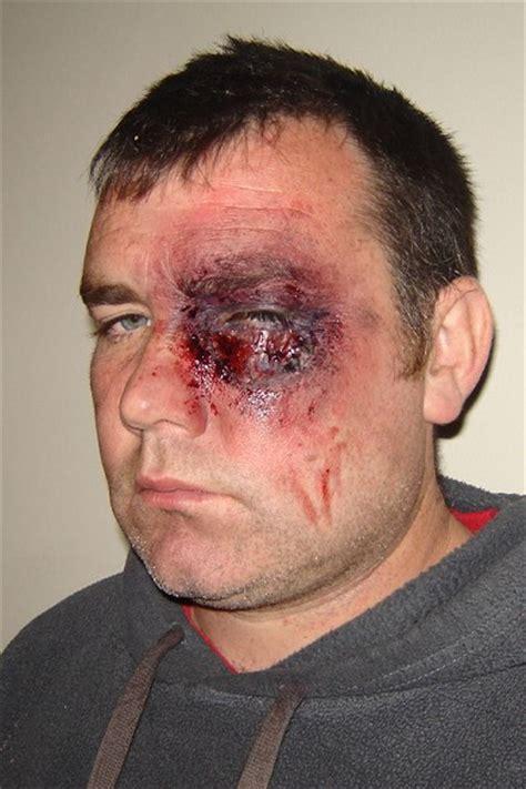 swollen eye swollen eye driverlayer search engine