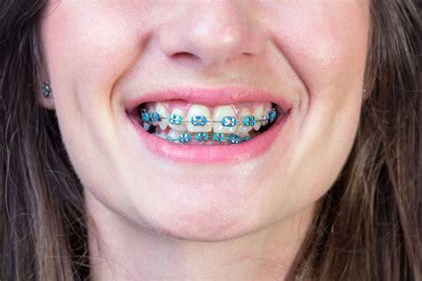 braces colors see your brace colors shining through protect your care