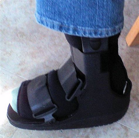 foot stress fracture boot a lesson on stress fractures professoryoga