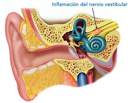 neuritis vestibular sintomas neuritis vestibular s 237 ntomas diagn 243 stico y tratamiento