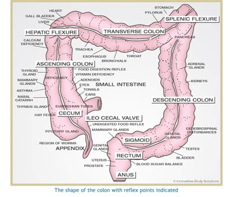 diagram of colon cancer 6 best images of complications and extended colon diagram