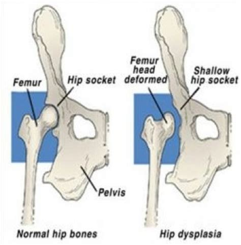 signs of hip dysplasia in dogs hip dysplasia and the cavalier king charles spaniel