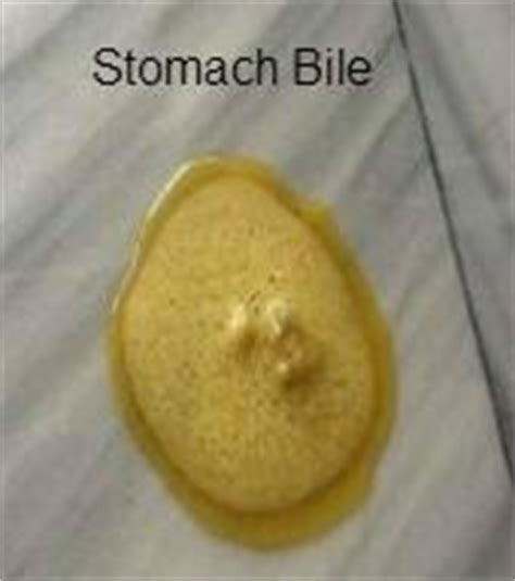 what color is stomach bile cat vomiting bile pathophysiology causes symptoms