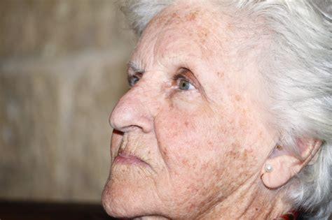 Mba Clinic Maidenhead by Liver Spot Age Spot Senile Freckle Sun Spots