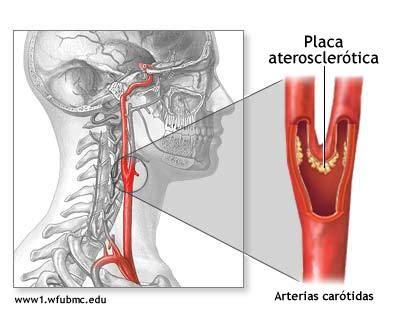carotide interna occlusa cardiolog 237 a para la comunidad fac