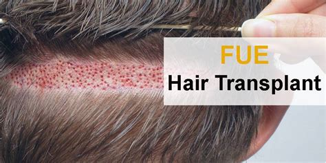 fut hong kong hair transplant fue vs fut hair transplant in delhi dr jangid