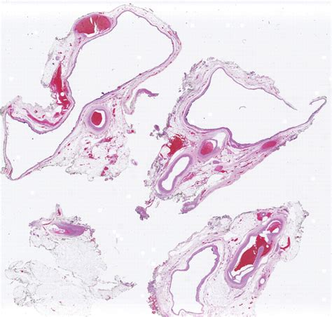 Cystic Lymphangioma Pathology Outlines by Pathology Outlines Mullerian Cyst Hattoris Cyst