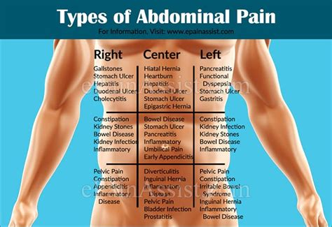how to fix stomach pain types of abdominal pain or stomach ache based on organ systems