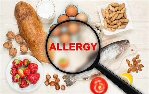 common allergies image gallery most common food allergies