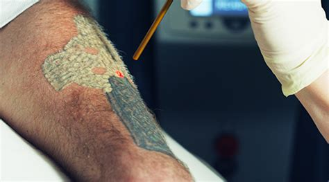 how to speed up tattoo removal overview