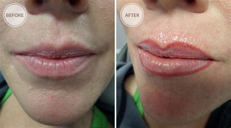 lip liner tattoo removal gallery spokane permanent cosmetics permanent makeup