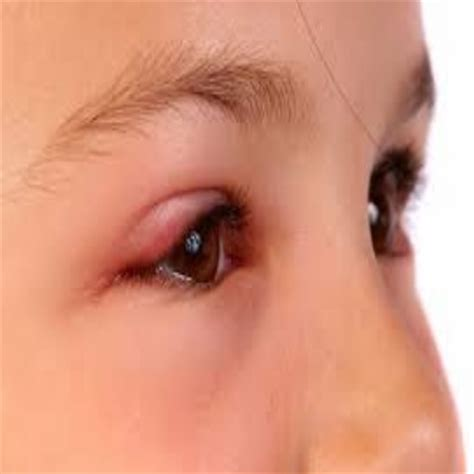 eye swollen swollen home remedies treatments and cures search herbal home remedy