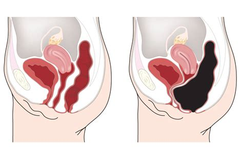 What To Do When Your Stool Is Stuck by 20 Pounds Of In Your Belly Gut Health Project