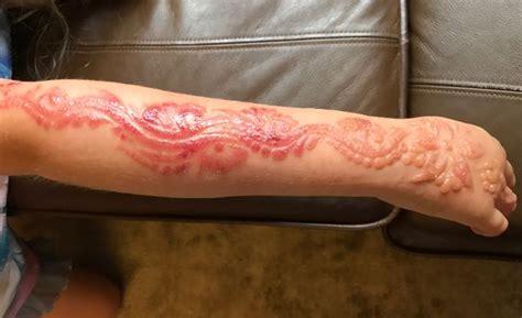 henna tattoo leaves girl 7 with horrific chemical burns holiday henna tattoo leaves girl seven with horrific