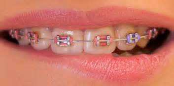 color braces choosing the color of your braces orthodontics