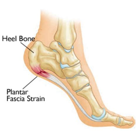 What Is Planter Fascitis by Plantar Fasciitis Symptoms Ironstruck