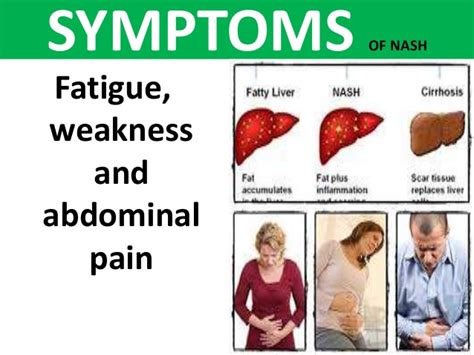 Signs Of Successful Liver Detox by Fatty Liver Disease In