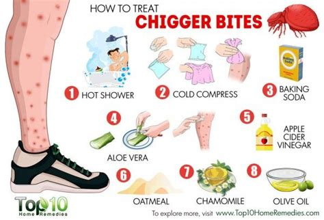 chiggers vs bed bugs how to treat chigger bites treats and chigger bites