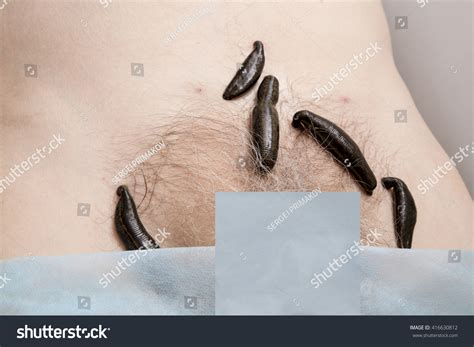 sculpted pubic hair treatment leeches groin area pubic bone stock photo