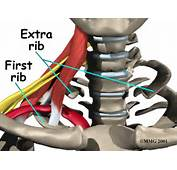 Pressure On Nerves And Vessels Can Happen In People Who Have Fractured