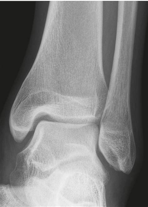 Galerry ap ankle x ray