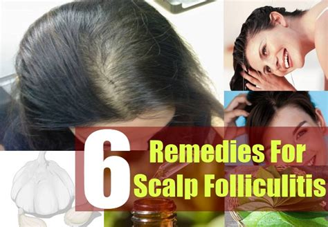 6 home remedies for scalp folliculitis how to get rid of